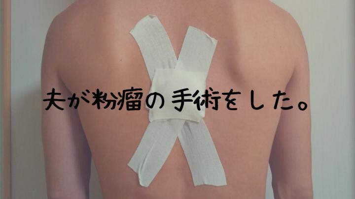 粉瘤 手術