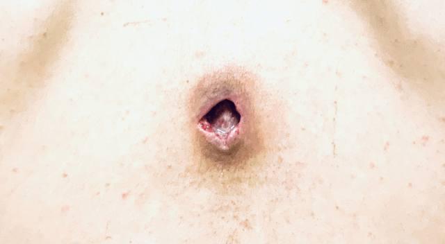 粉瘤 経過
